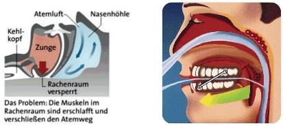 Anti-Schnarchschiene Funktionsweise